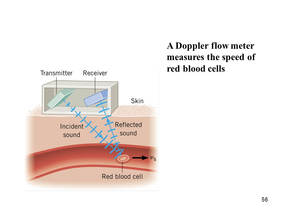 A Doppler flow meter measures the speed of red blood cells