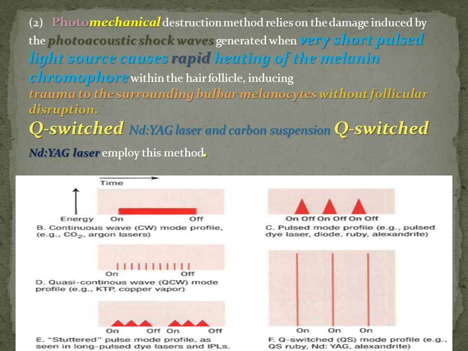 (2) Photomechanical destruction method relies on the damage induced by the photoacoustic shock waves generated when very short pulsed light source causes rapid heating of the melanin chromophore within the hair follicle, inducing