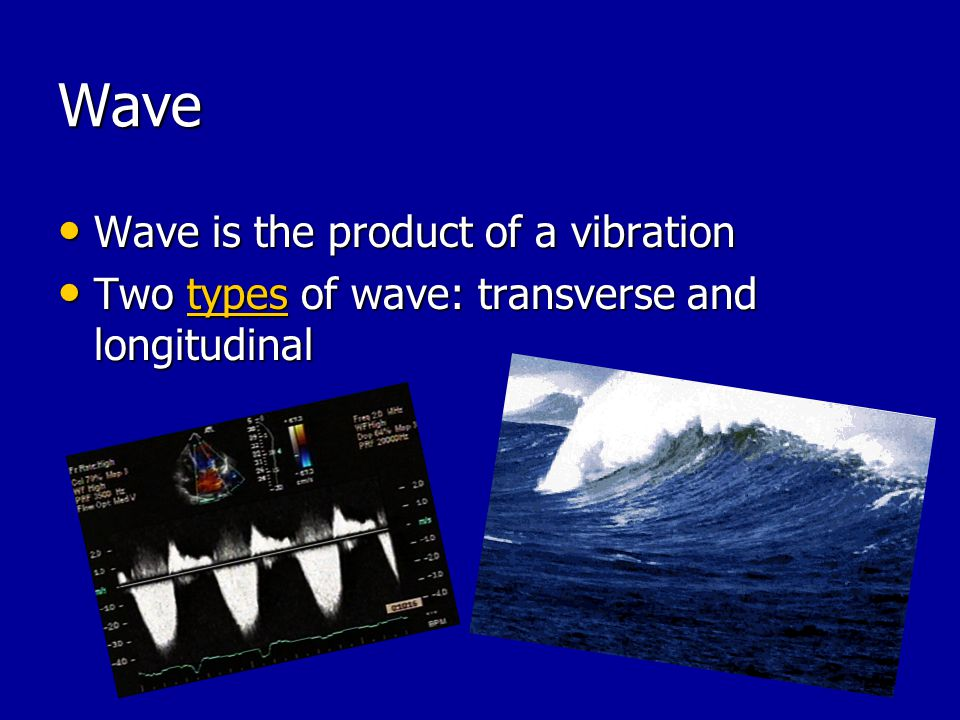 Wave Wave is the product of a vibration