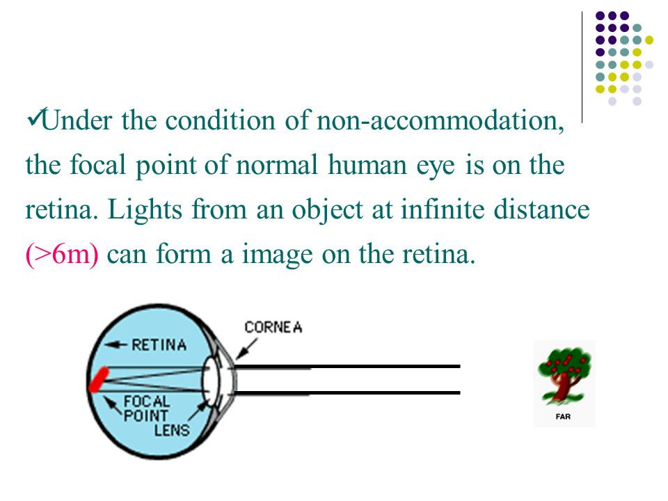Under the condition of non-accommodation, the focal point of normal human eye is on the retina.