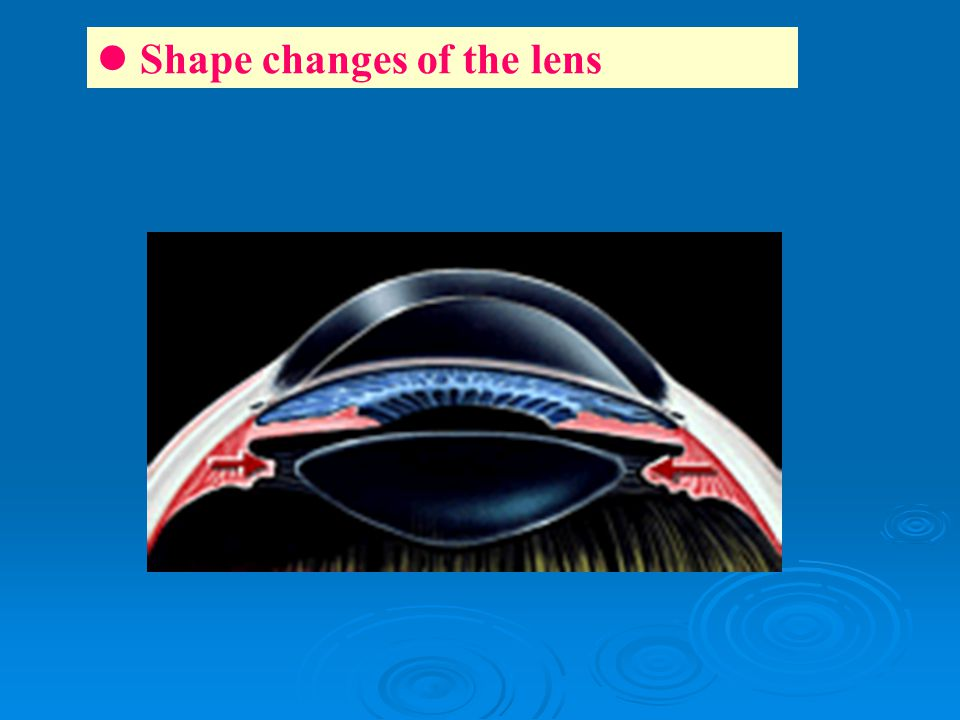 Shape changes of the lens