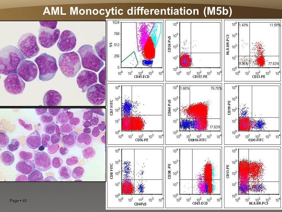 AML Monocytic differentiation (M5b)