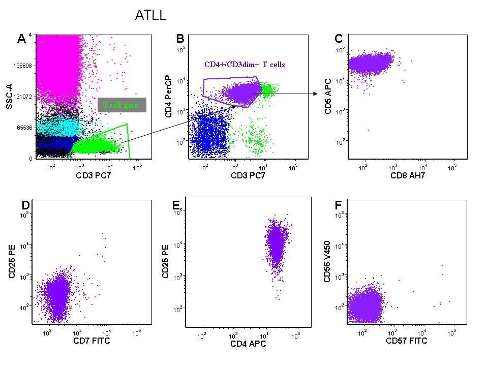 ATLL PERIPHERAL T CELL LYMPHOMA - NOS