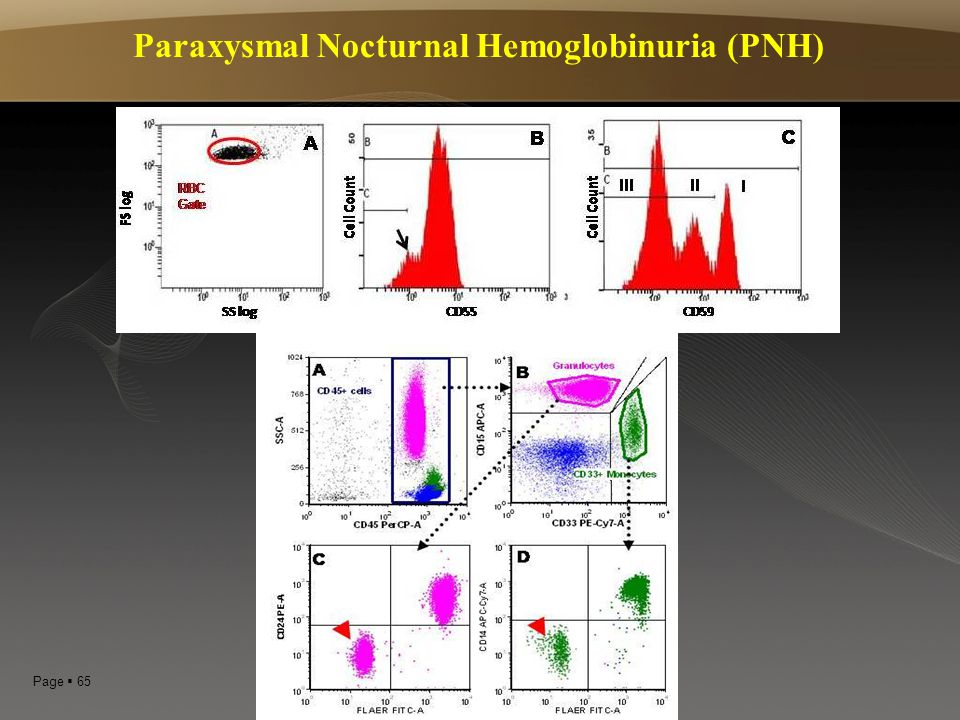 Paraxysmal Nocturnal Hemoglobinuria (PNH)