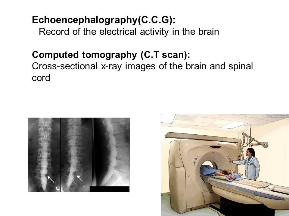 Echoencephalography(C.C.G):