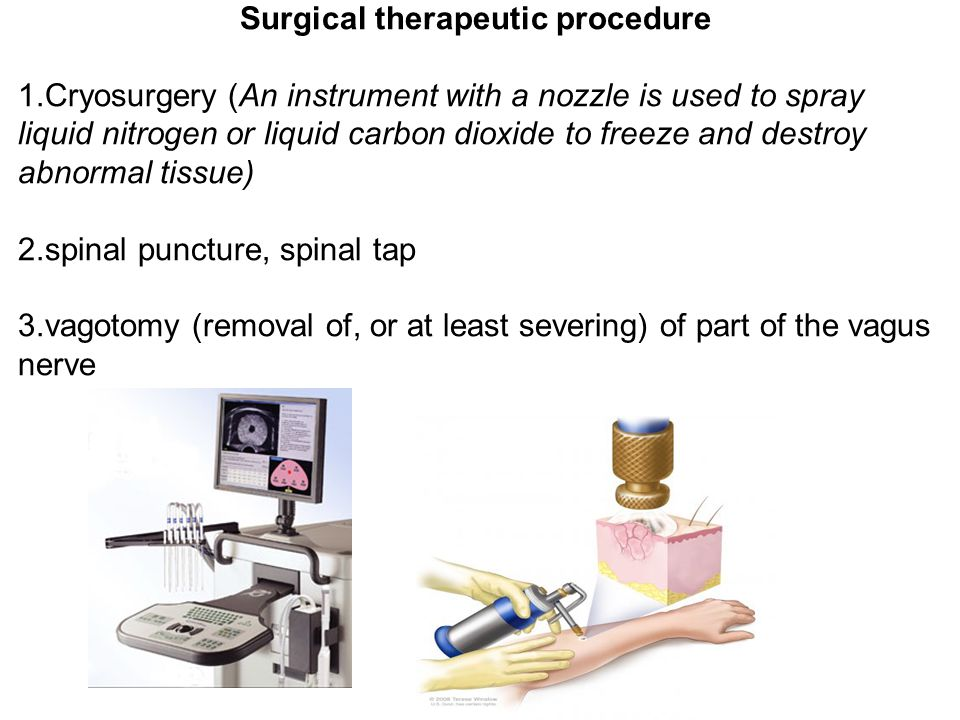 Surgical therapeutic procedure