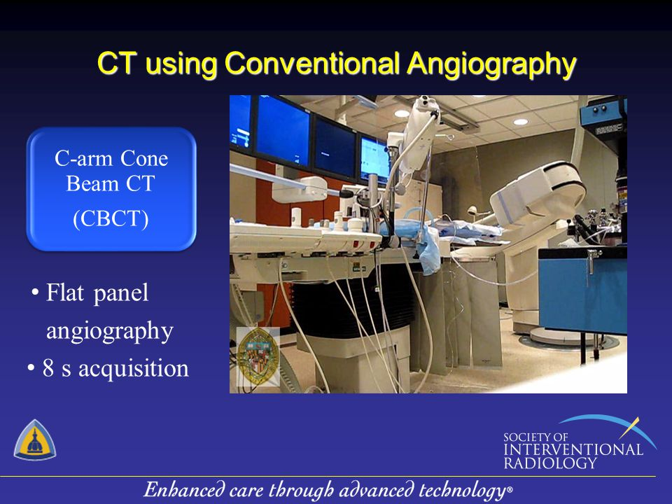 CT using Conventional Angiography