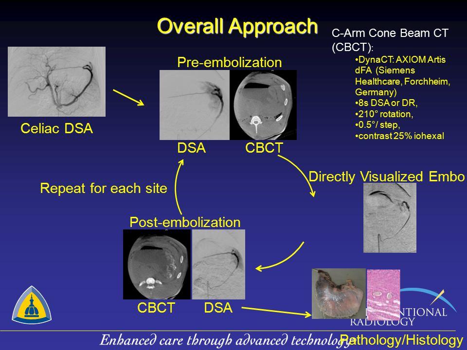 Overall Approach Pre-embolization DSA CBCT Celiac DSA