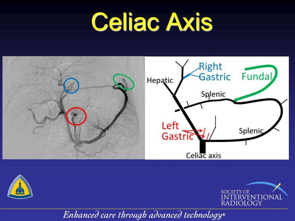 Celiac Axis GACE 1, Series 3