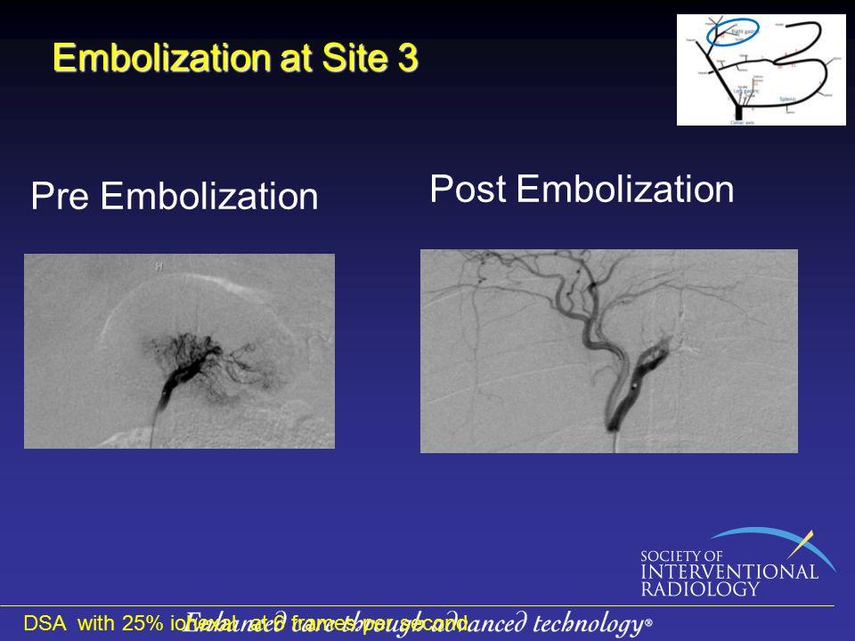 Embolization at Site 3 Post Embolization Pre Embolization