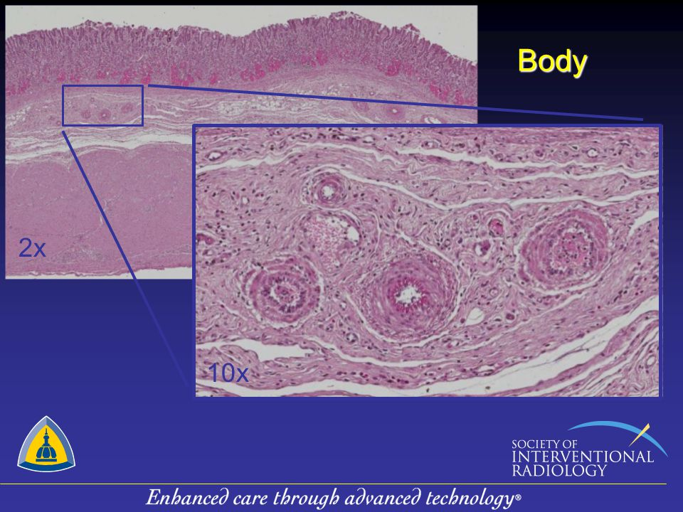 Body 2x. Here is an H&E of the body of the stomach at low power (2X) – we did not target that area.