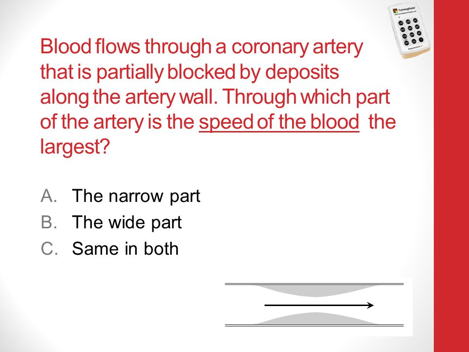 Blood flows through a coronary artery that is partially blocked by deposits along the artery wall. Through which part of the artery is the speed of the blood the largest