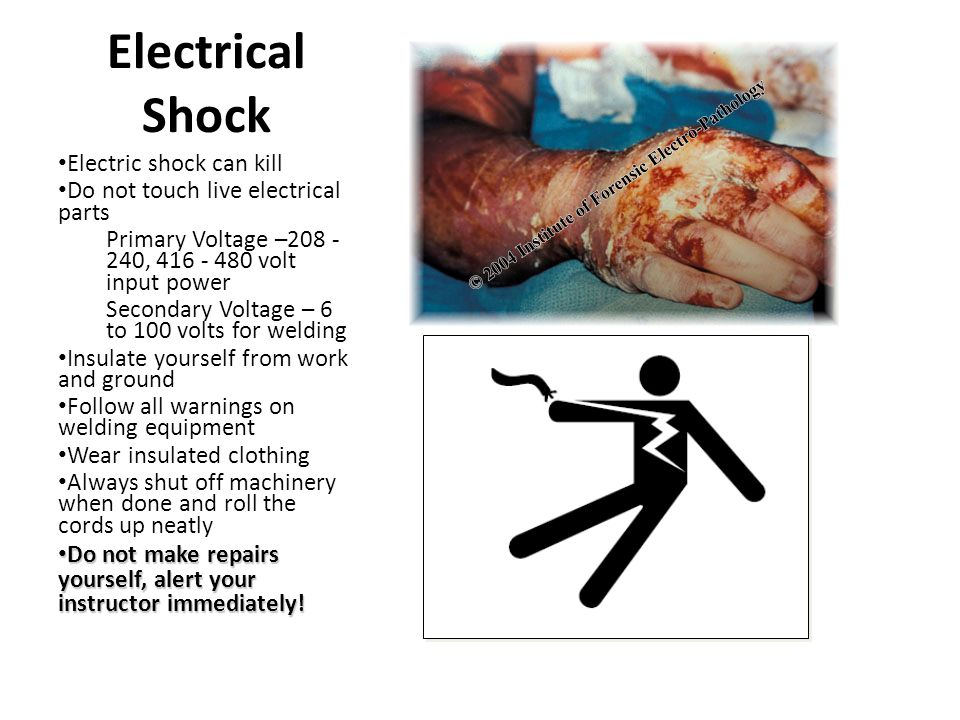 Electrical Shock Electric shock can kill