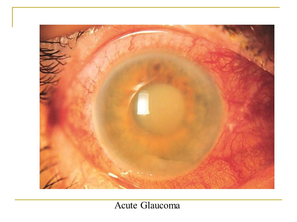 Acute glacoma Acute Glaucoma