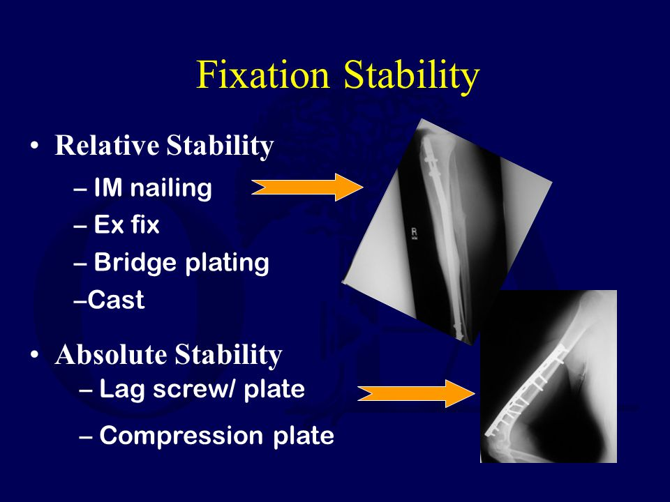 Fixation Stability Relative Stability Absolute Stability IM nailing
