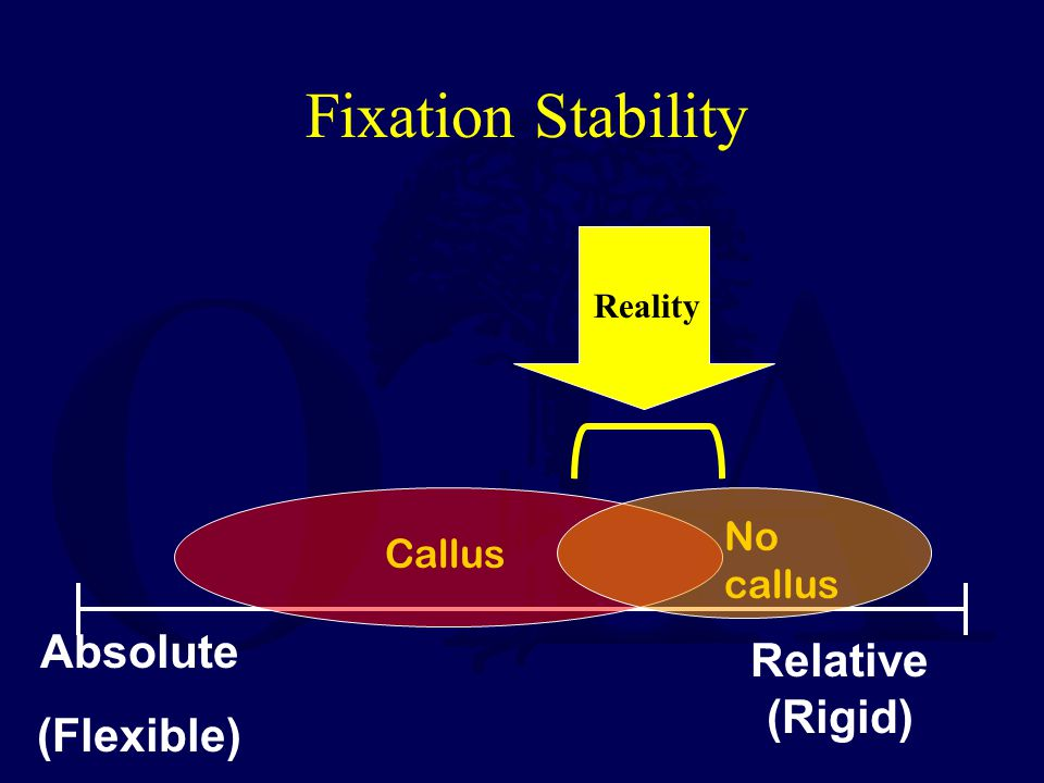 Fixation Stability Absolute Relative (Rigid) (Flexible) No callus
