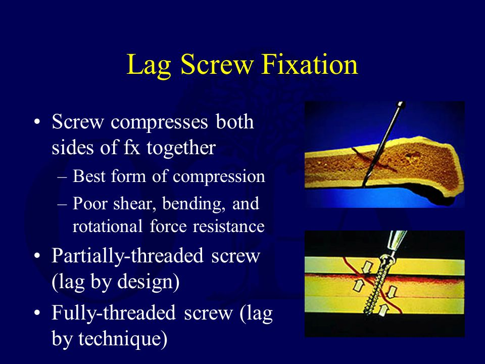 Lag Screw Fixation Screw compresses both sides of fx together