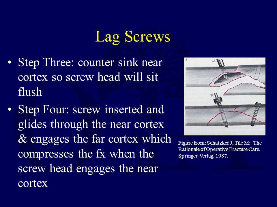 Lag Screws Step Three: counter sink near cortex so screw head will sit flush.