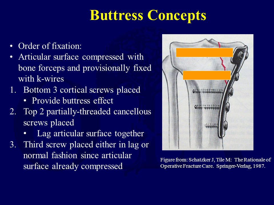 Buttress Concepts Order of fixation: