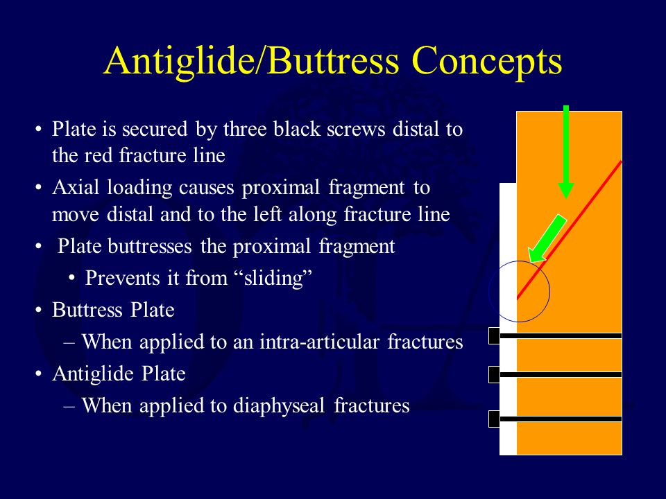 Antiglide/Buttress Concepts