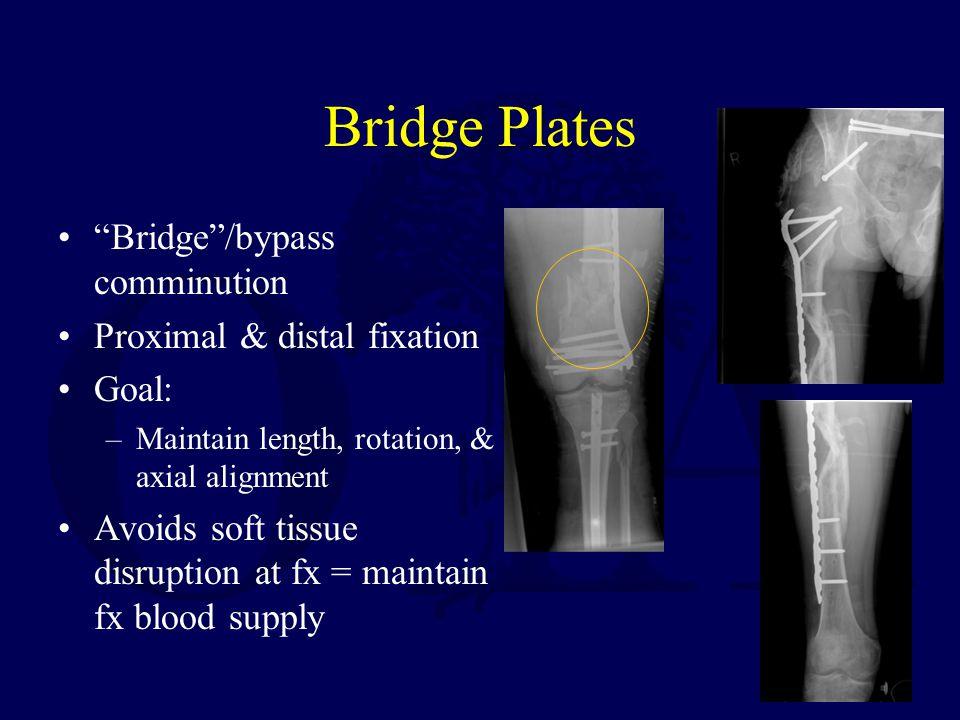 Bridge Plates Bridge /bypass comminution Proximal & distal fixation