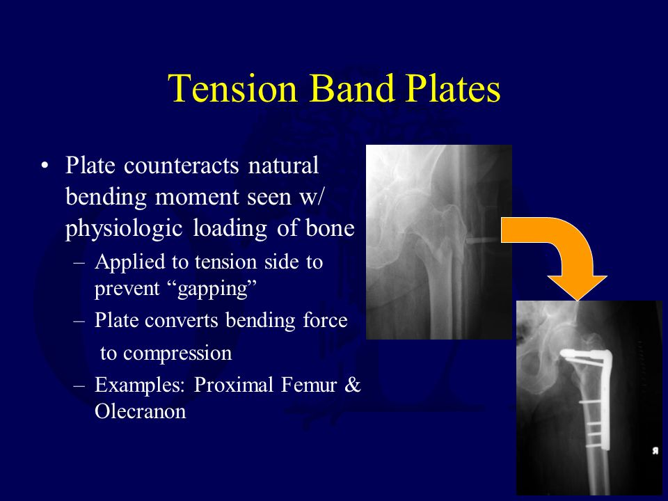 Tension Band Plates Plate counteracts natural bending moment seen w/ physiologic loading of bone. Applied to tension side to prevent gapping