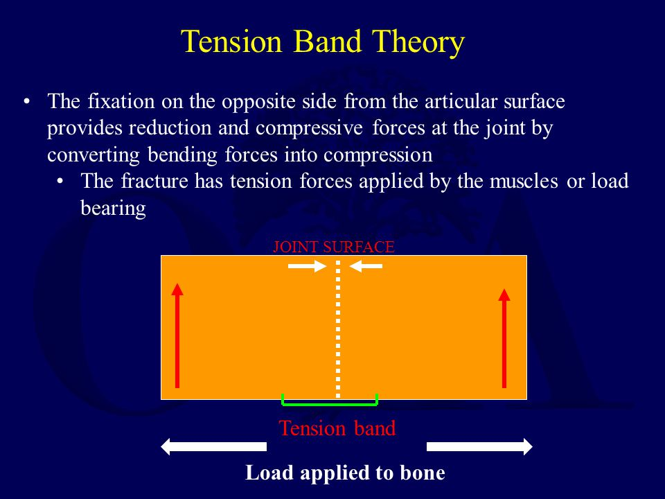 Tension Band Theory