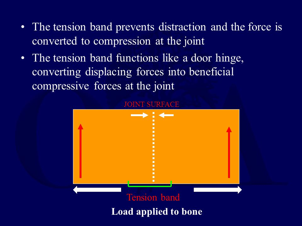 The tension band prevents distraction and the force is converted to compression at the joint