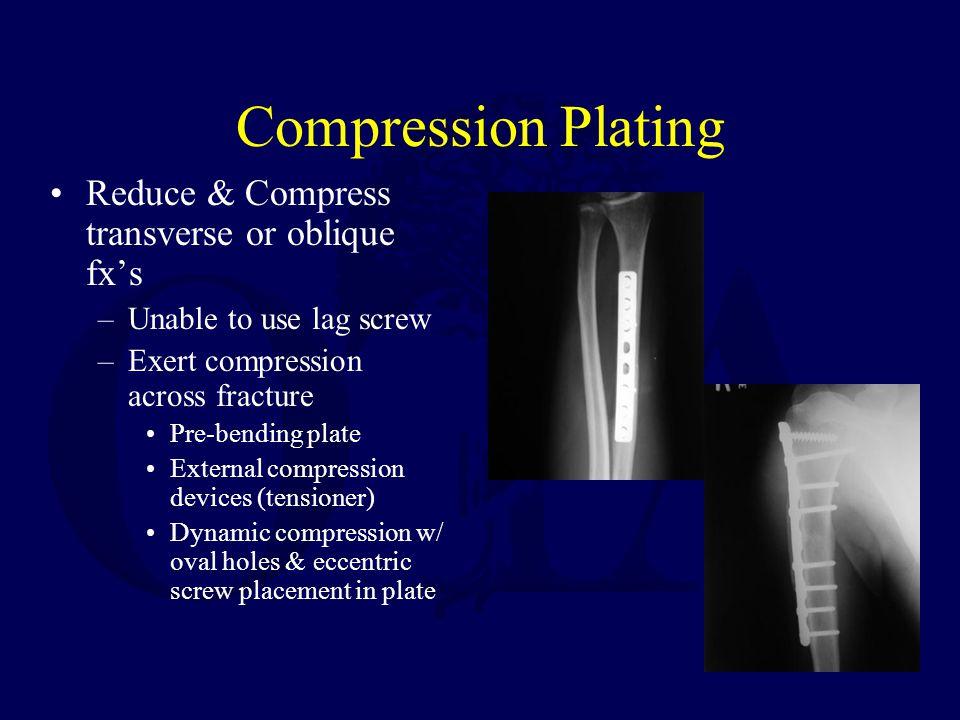 Compression Plating Reduce & Compress transverse or oblique fx's