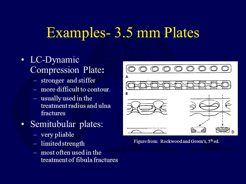 Examples- 3.5 mm Plates LC-Dynamic Compression Plate: