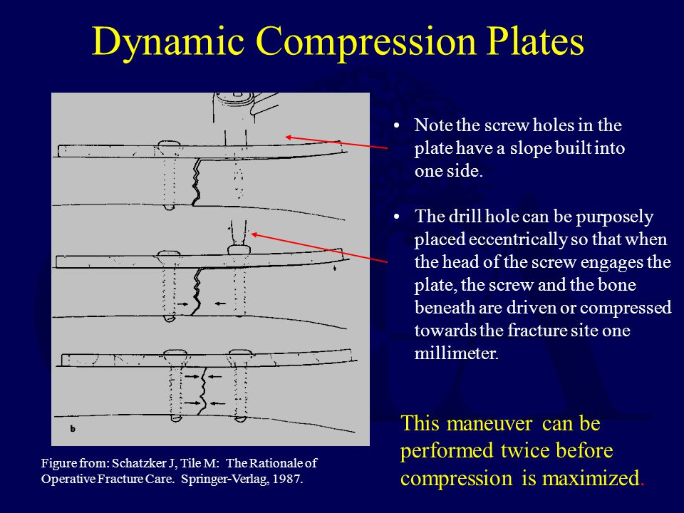 Dynamic Compression Plates