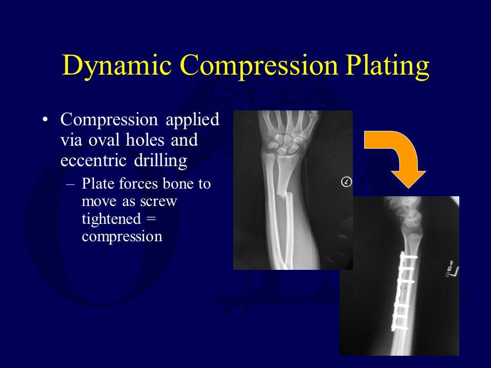 Dynamic Compression Plating