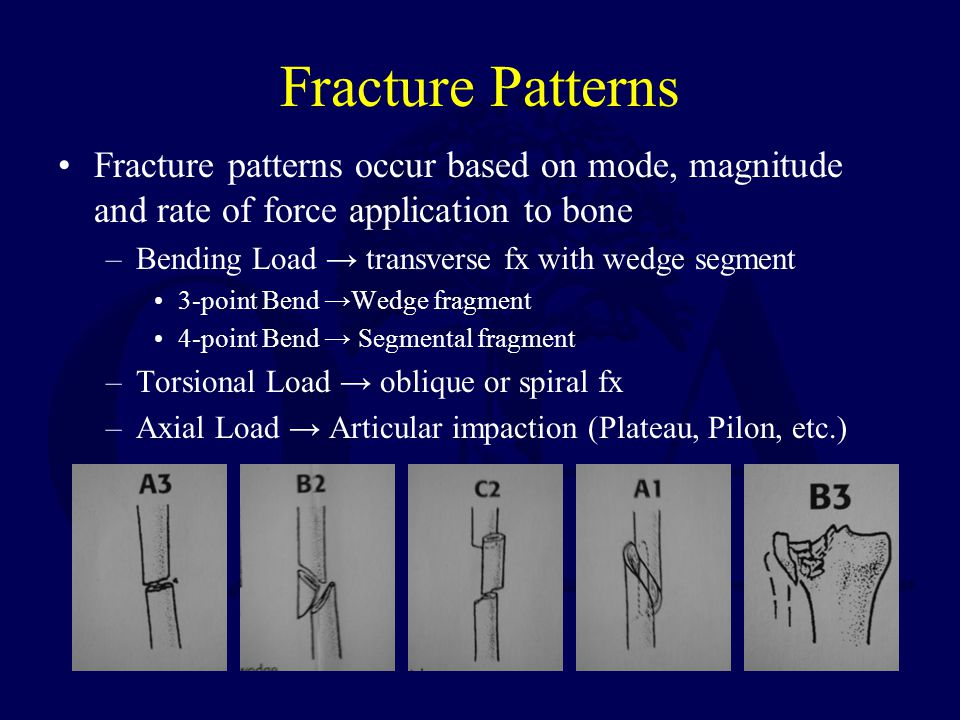 Fracture Patterns Fracture patterns occur based on mode, magnitude and rate of force application to bone.