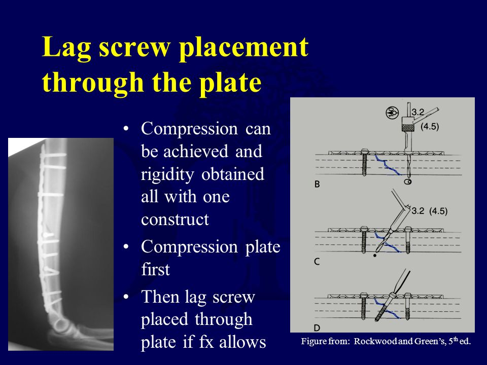 Lag screw placement through the plate
