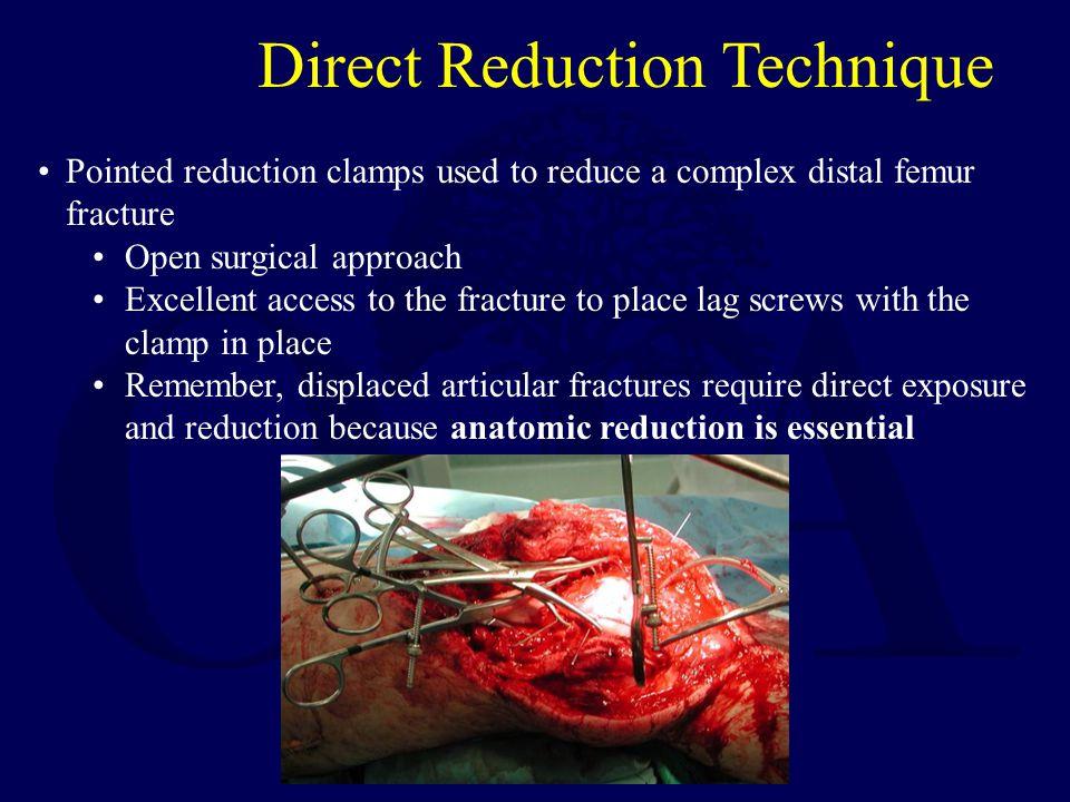 Direct Reduction Technique