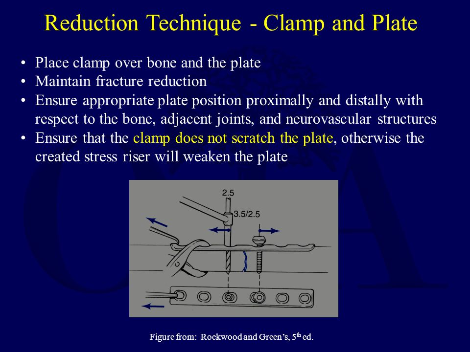 Reduction Technique - Clamp and Plate