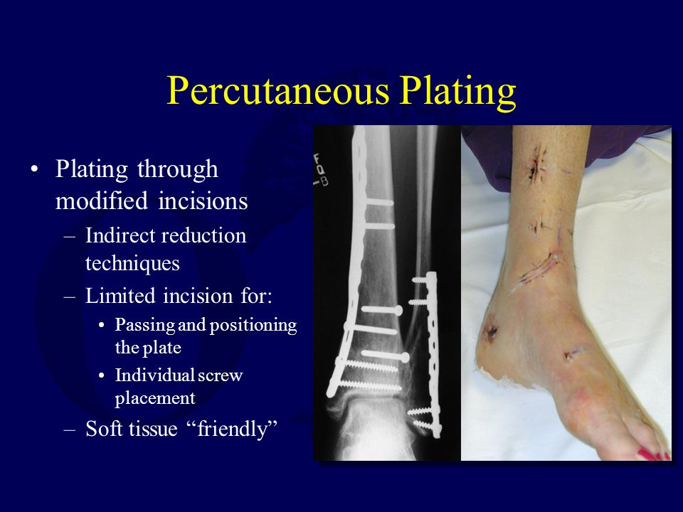 Percutaneous Plating Plating through modified incisions