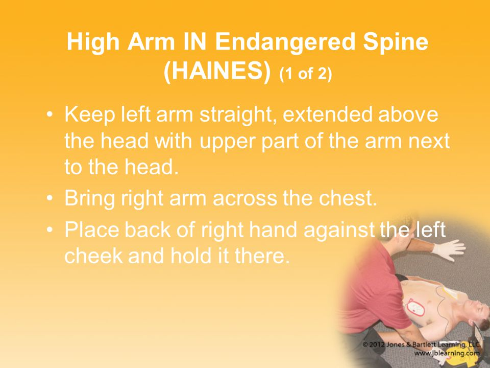 High Arm IN Endangered Spine (HAINES) (1 of 2)
