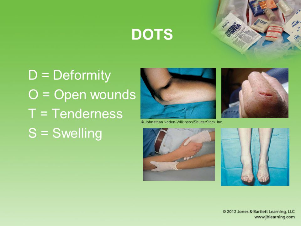 DOTS D = Deformity O = Open wounds T = Tenderness S = Swelling
