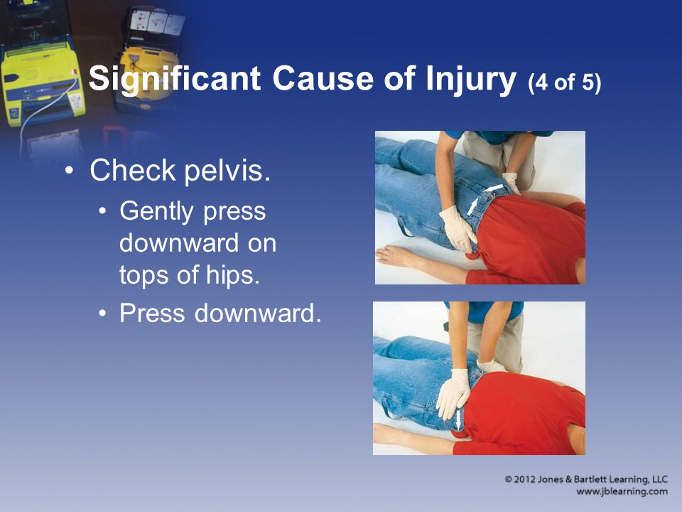 Significant Cause of Injury (4 of 5)