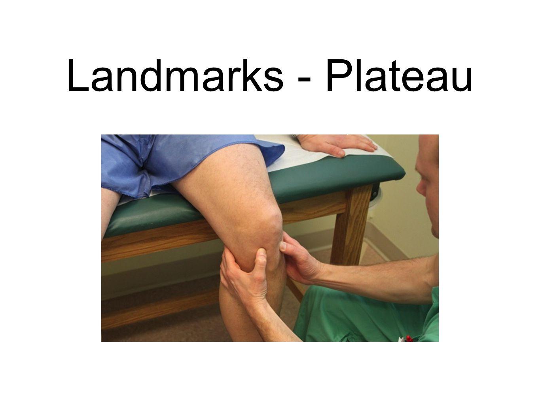 Landmarks - Plateau