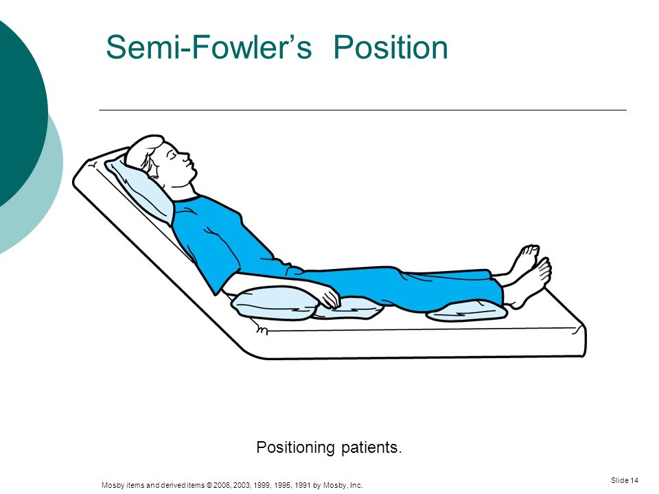 Semi-Fowler's Position