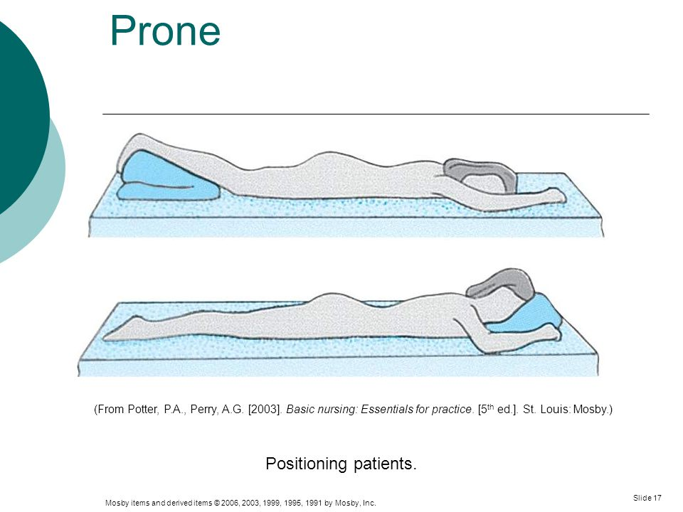 Prone Positioning patients.