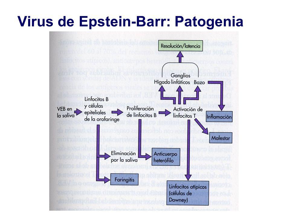 Virus de Epstein-Barr: Patogenia