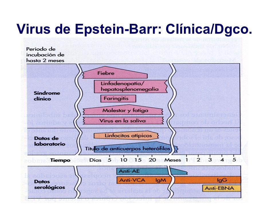 Virus de Epstein-Barr: Clínica/Dgco.