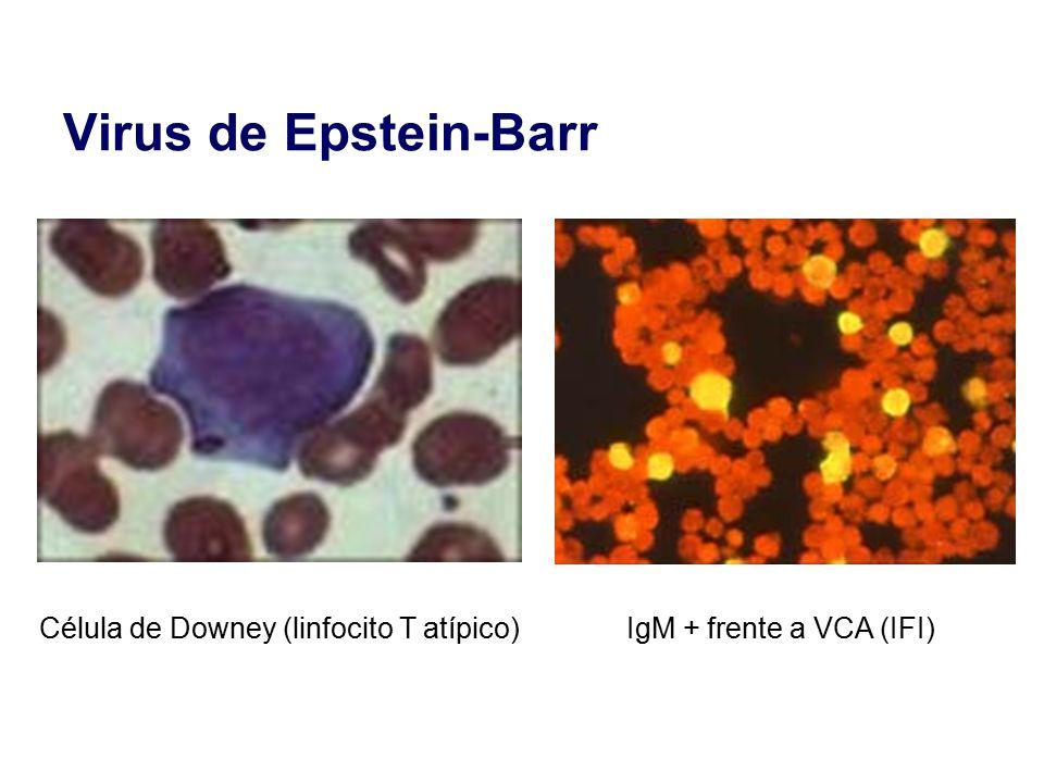 Virus de Epstein-Barr Célula de Downey (linfocito T atípico)