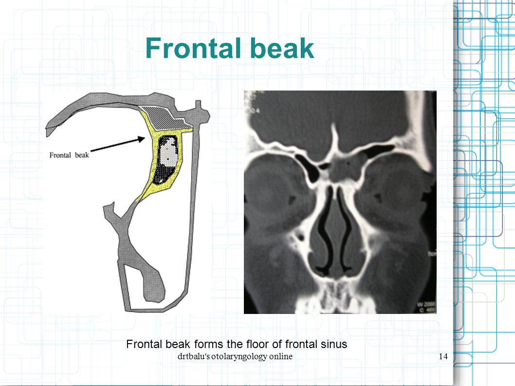 Frontal beak Frontal beak forms the floor of frontal sinus