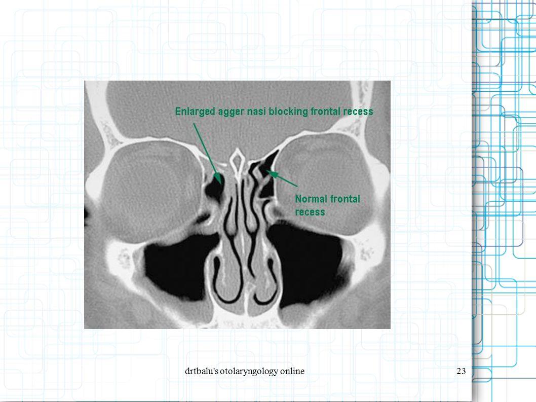 drtbalu s otolaryngology online