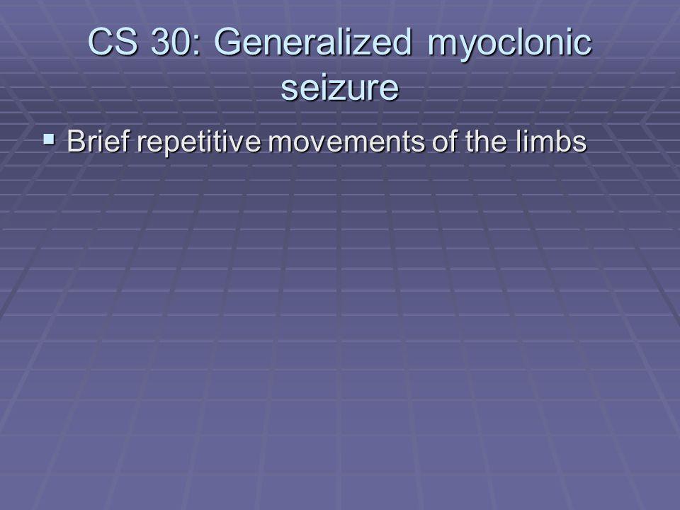CS 30: Generalized myoclonic seizure