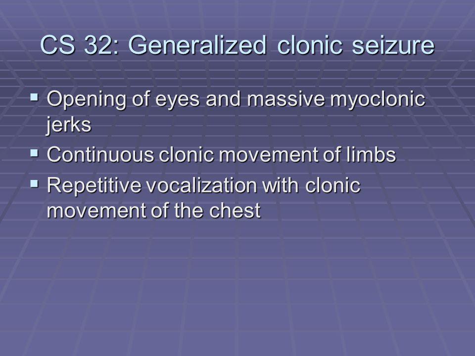 CS 32: Generalized clonic seizure